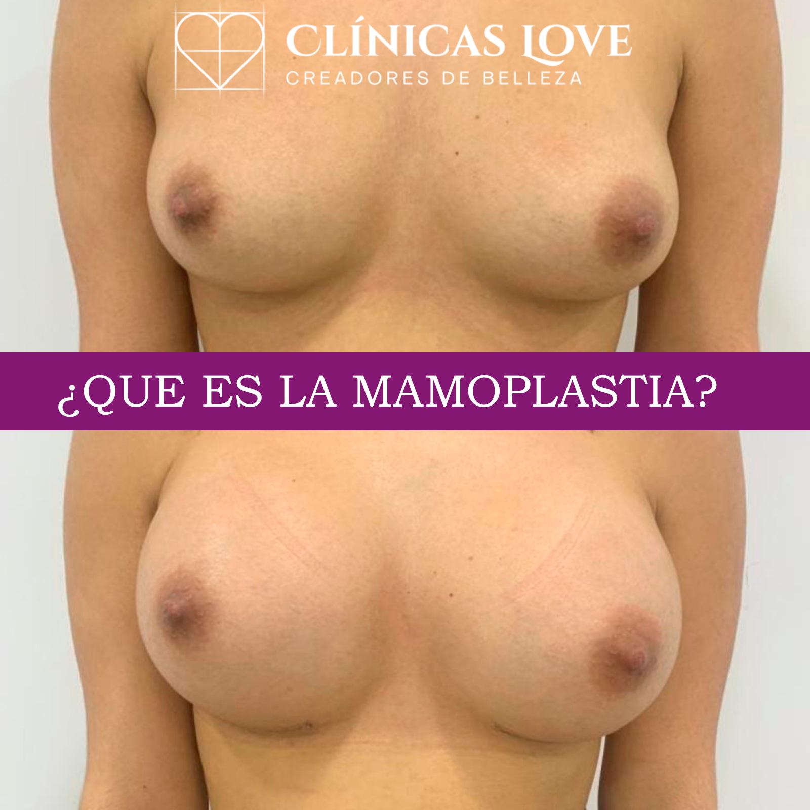 Que es la mamoplastia de aumento