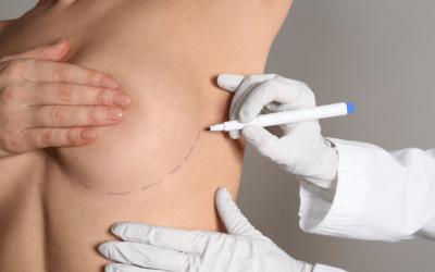 Cirugía de mamas: las 8 preguntas más frecuentes